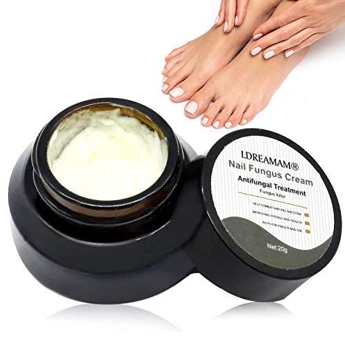 Trattamento delle unghie dei piedi,Fungo Del Chiodo,Trattamento Unghie,Trattamento per la cura delle unghie della crema antifungina, efficace contro il fungo delle unghie