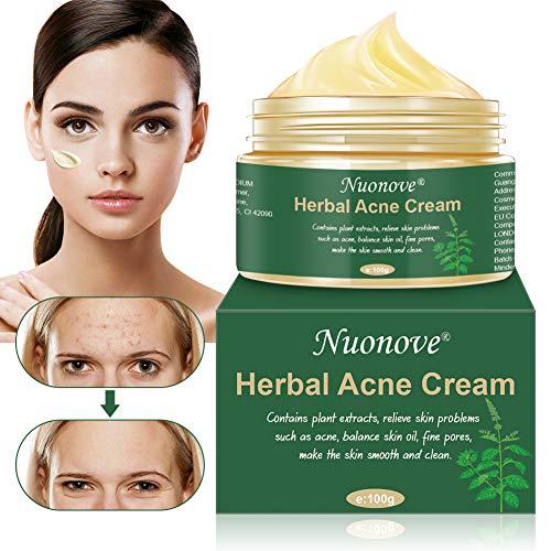 Crema Acne, Acne Crema Viso, Anti Acne, Crema Cicatrici Acne, Crema Viso Acne, Crema Acne per il viso, il collo, petto e schiena, Aiuta a bilanciare l'acqua e l'olio del viso, rimuovere l'acne, 100g