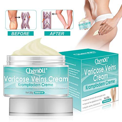 Varicose Vein Crème, sollievo flebite angiite infiammazione vene del sangue vene vasculite trattamento gambe cura