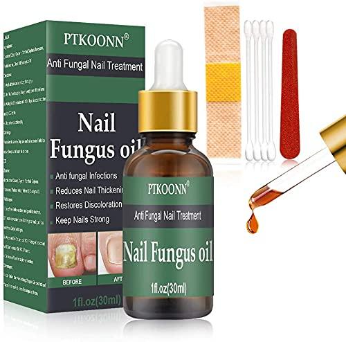 Trattamento Unghie,Nail Repair Olio Essenziale, Cura delle unghie, per per unghie danneggiate e scolorite, Migliora la salute delle unghie di mani e piedi