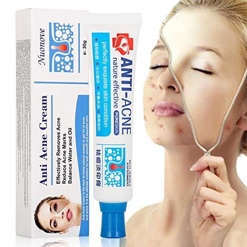Acne Crema, Crema Anti Acne, Crema Acne, Crema Cicatrici Acne, Crema Viso Acne, Gel anti acne per il viso, il collo, petto e schiena, 30g