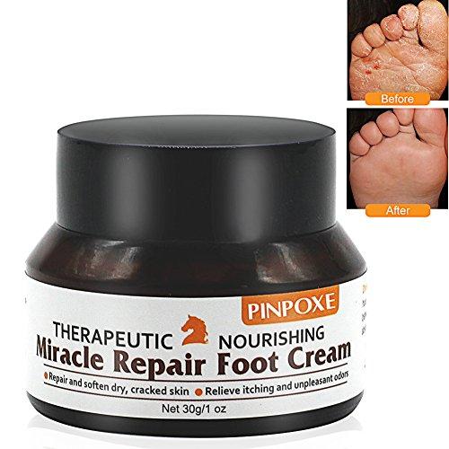 PINPOXE, crema per la cura dei piedi, balsamo per piedi, balsamo per cavalli, per piedi secchi e fragili, cura e previene infezioni fungine, sudore e odore, 30 g, bianco