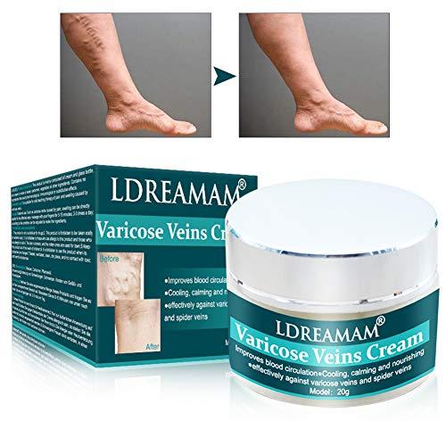 Varicose Vein Crème, Vein Vanish, Crema di vene varicose, Crema per il trattamento delle vene varicose, circolazione sanguigna, Trattamento delle vene del ragno delle gambe di vasculite