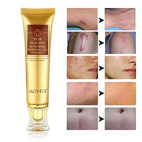 TCM Crema per rimozione di segni di cicatrici e acne per la riparazione della pelle cicatrici ustioni tagli gravidanza smagliature acne macchie pelle arrossamento crema gel unguento per viso e corpo