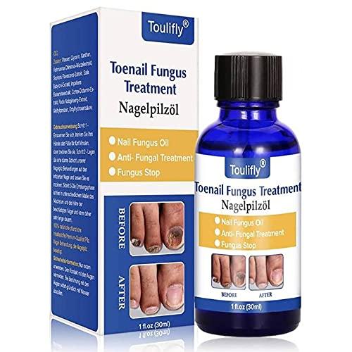 Toenail Fungus Treatment, Funghi Unghie, Fungus Stop, Nail Fungus Treatment, Efficace Contro Nail Fungus, Rimuove Giallo da Dito e Unghie dei Piedi, Ripristina Toenail
