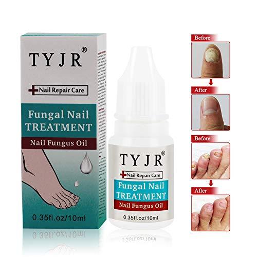 Funghi Unghie,Antimicotico,Funghi Unghie Trattamento,la cura delle unghie contro fungo del chiodo per piedi e mani (10ml)